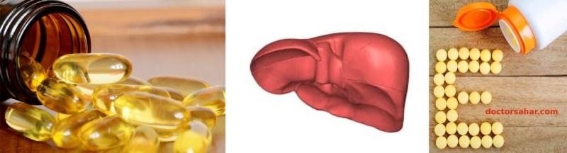 ویتامین ای و کبد چرب